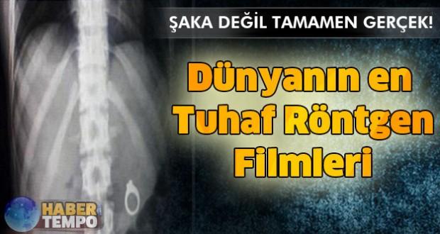 Dünyanın en tuhaf röntgen filmleri